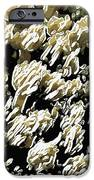 Beautiful Marine Plants 4 IPhone Case by Lanjee Chee