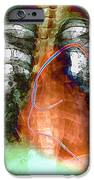 Heart Pacemaker, X-ray IPhone Case by Du Cane Medical Imaging Ltd