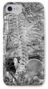 This Is Your Spinal Notice IPhone Case by Betsy Knapp