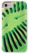 Diatom Frustule, Sem IPhone Case by Steve Gschmeissner