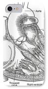Illustration Of Heart Anatomy IPhone Case by Science Source