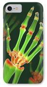 Arthritic Hand, X-ray Artwork IPhone Case by David Mack