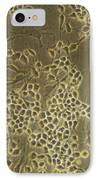 Neural Stem Cells IPhone Case by Riccardo Cassiani-ingoni