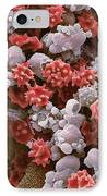 Cells From A Urine Infection, Sem IPhone Case by Steve Gschmeissner