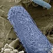 Ciliate Protozoan, Sem Poster by Steve Gschmeissner