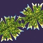 Micrasterias Desmids, Light Micrograph Poster by Science Photo Library
