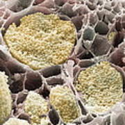 Cabbage Root Infection, Sem Poster by Power And Syred