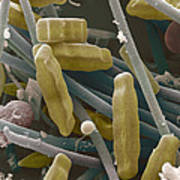Sem Of Diatoms And Blue-green Algae Poster by Power And Syred
