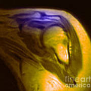 Mri Of Shoulder With Impingement Poster by Science Source