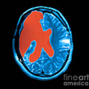 Mri Shows Near Total Hemispherectomy Poster by Medical Body Scans