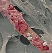 Ruptured Venule, Sem Poster by Steve Gschmeissner