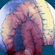 Large Intestine, X-ray Poster by Du Cane Medical Imaging Ltd