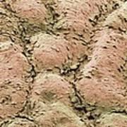 Skin Surface, Sem Poster by Steve Gschmeissner