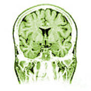 Normal Coronal Mri Of The Brain Poster by Medical Body Scans
