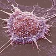 Cervical Cancer Cell, Sem Poster by Steve Gschmeissner