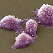 Cervical Cancer Cells, Sem Poster by Steve Gschmeissner