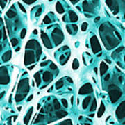 Sem Of Human Shin Bone Poster by Science Source