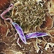 Macrophage Attacking A Foreign Body, Sem Poster by