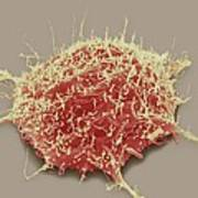 Brain Cancer Cell, Sem Poster by Steve Gschmeissner