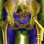 Fractured Femur Poster by Du Cane Medical Imaging Ltd