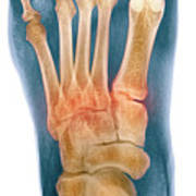 Crushed Broken Foot, X-ray Poster by