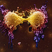 Cancer Cell Division Print by SPL and Photo Researchers