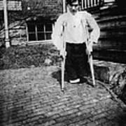 Child Labor, Frank P., Legs Were Cut Print by Everett