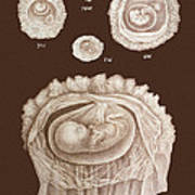Development Of A Foetus In A Womb, 1891 Print by Mehau Kulyk
