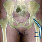 Fractured Femur Print by Du Cane Medical Imaging Ltd