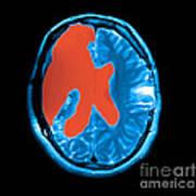 Mri Shows Near Total Hemispherectomy Print by Medical Body Scans