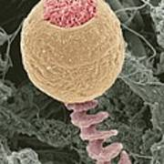 Vorticella Protozoan, Sem Print by Steve Gschmeissner