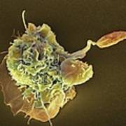 Macrophage Attacking A Foreign Body, Sem Print by