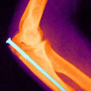 Broken Arm With Metal Pin, X-ray Print by Science Source