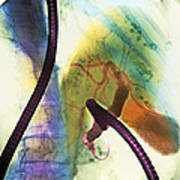 Coloured X-ray Of Gall Bladder During Endoscopy Print by