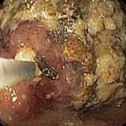 Food Retention From Gastric Cancer Print by Gastrolab