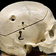 Gunshot Trauma To Skull, 1950s Print by Science Source