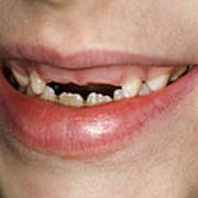 Loss Of Milk Teeth Print by Lawrence Lawry