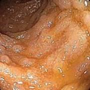 Lymphoid Hyperplasia In Small Intestine Print by Gastrolab