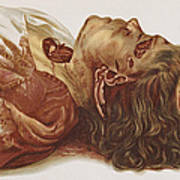 Murder Victim 1898 Print by Science Source