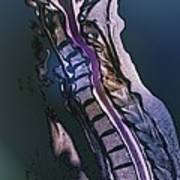 Slipped Disc, Mri Scan Print by Zephyr