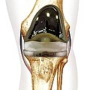 Total Knee Replacement, Artwork Print by D & L Graphics