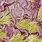 Uterine Cancer, Sem Print by Steve Gschmeissner
