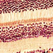 Retina, Light Micrograph Print by Steve Gschmeissner