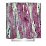 Lm Of Cardiac Muscle Shower Curtain by AFIP/Science Source