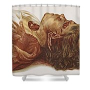 Murder Victim 1898 Shower Curtain by Science Source