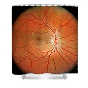 Normal Retina Shower Curtain by Science Source