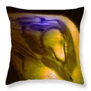Mri Of Shoulder With Impingement Throw Pillow by Science Source