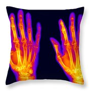 Normal Hand Throw Pillow by Ted Kinsman