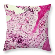 Ewing Sarcoma Throw Pillow by Science Source