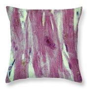 Lm Of Cardiac Muscle Throw Pillow by AFIP/Science Source
